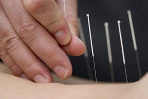 Acupuncture benefits are extensive